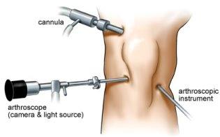 Arthritis Keyhole Surgery Cost