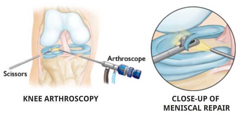 arthroscopic keyhole surgery